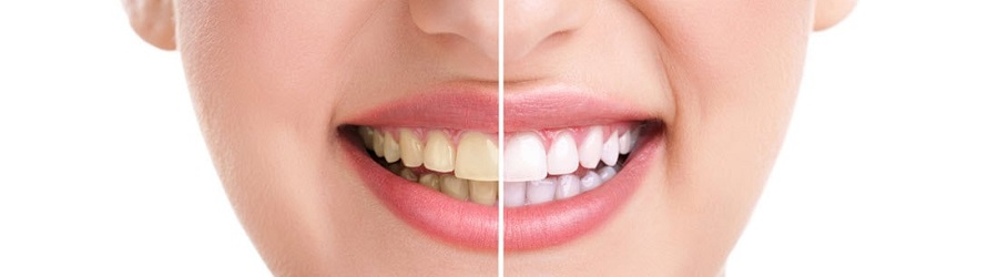 teeth whitening oakwood